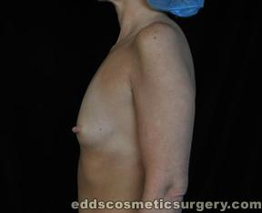 Breast Augmentation (Breast Implants) Before Picture 1