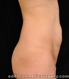 Tummy Tuck (Abdominoplasty) Before Picture 1