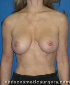 Breast Augmentation (Breast Implants) After Picture 1