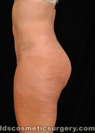 Tummy Tuck (Abdominoplasty) After Picture 1
