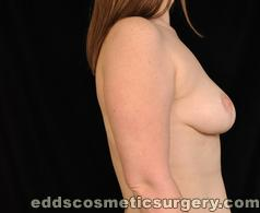 Breast Lift Surgery After Picture 1