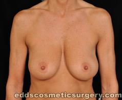 Breast Lift Surgery Before Picture 1