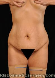 Tumescent Liposuction Before Picture 1