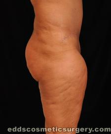 Tumescent Liposuction After Picture 1