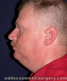 Chin Augmentation (Implants) Before Picture 1