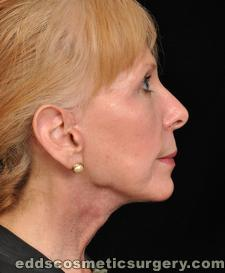 Chin Augmentation (Implants) After Picture 1